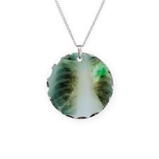 Lung abscess, X-ray Necklace