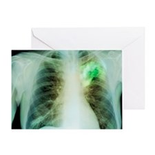 Lung abscess, X-ray Greeting Card