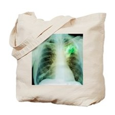Lung abscess, X-ray Tote Bag
