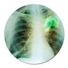Lung abscess, X-ray Round Car Magnet