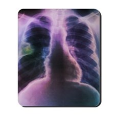 Lung abscess, X-ray Mousepad