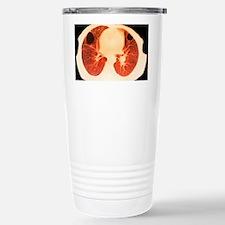 Lung abscess, CT scan Travel Mug