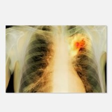 Lung abscess, X-ray Postcards (Package of 8)