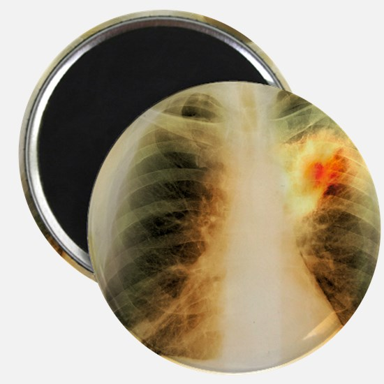 Lung abscess, X-ray Magnet