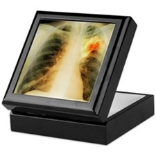 Lung abscess, X-ray Keepsake Box