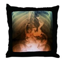 Gastric bypass surgery, X-ray Throw Pillow