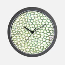 Liverwort leaf tissue, light micrograph Wall Clock
