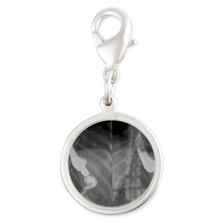 Gastric bypass surgery, X-ray Silver Round Charm