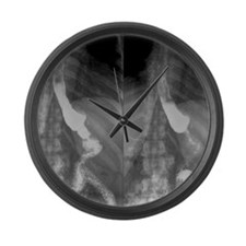 Gastric bypass surgery, X-ray Large Wall Clock