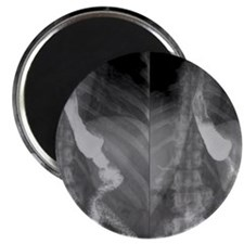 Gastric bypass surgery, X-ray Magnet