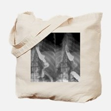 Gastric bypass surgery, X-ray Tote Bag