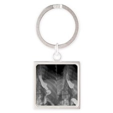 Gastric bypass surgery, X-ray Square Keychain
