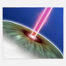 Laser eye surgery, computer artwork King Duvet