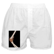 Fractured elbow, CT scan Boxer Shorts