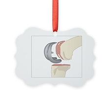 Knee replacement, artwork Ornament