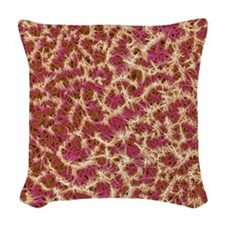 Kidney stone crystals, SEM Woven Throw Pillow