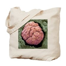Kidney glomerulus, SEM Tote Bag