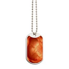 Human foetus in the womb, artwork Dog Tags