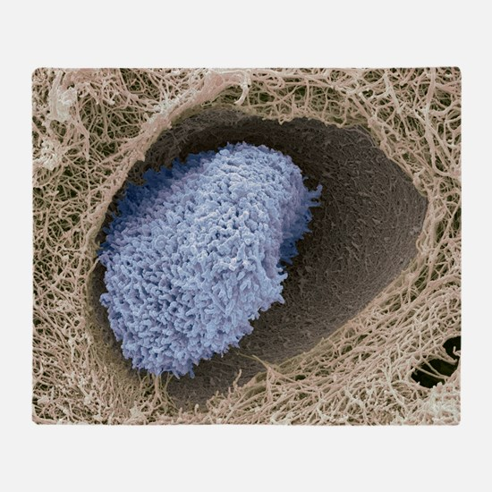Hyaline cartilage, SEM Throw Blanket