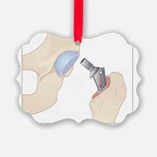 Hip replacement, artwork Ornament