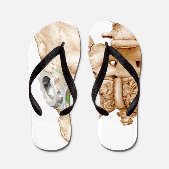 Hip replacement, artwork Flip Flops