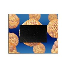 High cholesterol levels Picture Frame