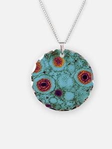Herpes virus, TEM Necklace