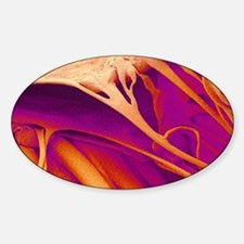Heart valve and strings, SEM Sticker (Oval)