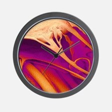 Heart valve and strings, SEM Wall Clock