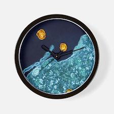 Hepatitis C viruses, TEM Wall Clock