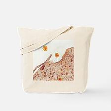 Hepatitis C viruses, TEM Tote Bag