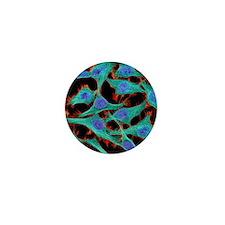HeLa cells, light micrograph Mini Button