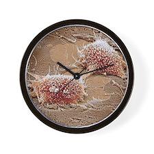 Dividing cancer cell, SEM Wall Clock
