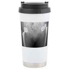 Dislocated hip replacement, X-r Travel Mug