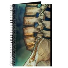 Fusion of spinal bones, X-ray Journal
