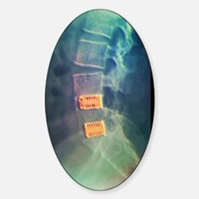 Fusion of spinal bones, X-ray Sticker (Oval)