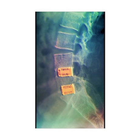 Fusion of spinal bones, X-ray Sticker (Rectangle)