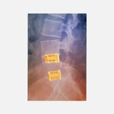 Fusion of spinal bones, X-ray Rectangle Magnet