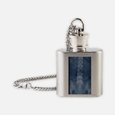 Fusion of spinal bones, X-ray Flask Necklace