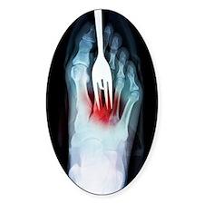 Foot fork-stabbing injury, X-ray Decal
