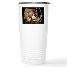 Cystic pancreas tumour, CT scan Travel Mug