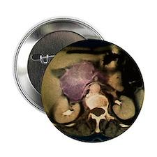 "Cystic pancreas tumour, CT scan 2.25"" Button"