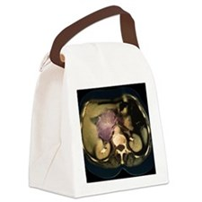 Cystic pancreas tumour, CT scan Canvas Lunch Bag