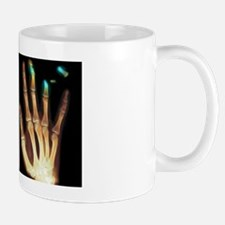 Fingertip laceration injuries, X-rays Mug
