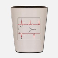 ECG of a normal heart rate, artwork Shot Glass