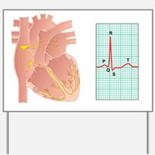Electrical conduction of the heart Yard Sign