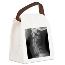 Dislocated neck bones, X-ray Canvas Lunch Bag