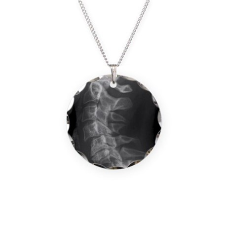 Dislocated Neck Bones, X-ray Necklace By Admin_CP66866535