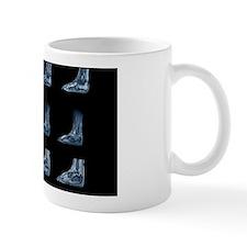 Charcot arthropathy, MRI scans Mug