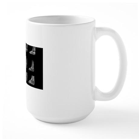 Charcot arthropathy, MRI scans Large Mug